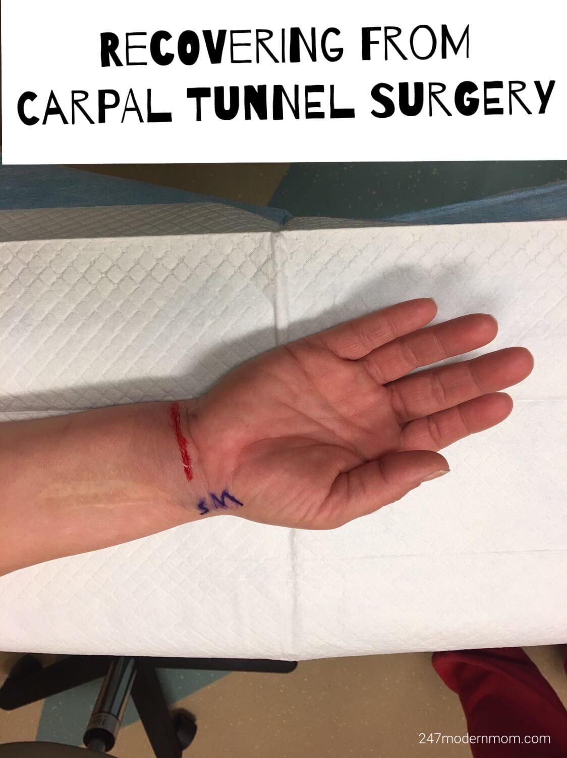 Carpal Tunnel Surgery Recovery: 3 Months Later